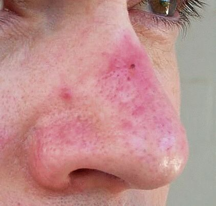 would say that I had these rosacea symptoms for about 15 years or so ...