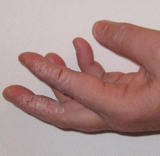 Yeast Infection On Fingers